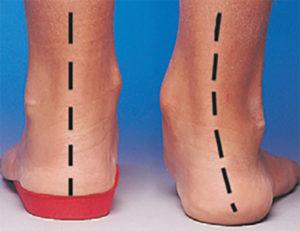 Wkładki ortopedyczne - badanie